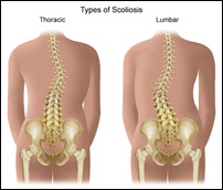 types-of-scoliosis