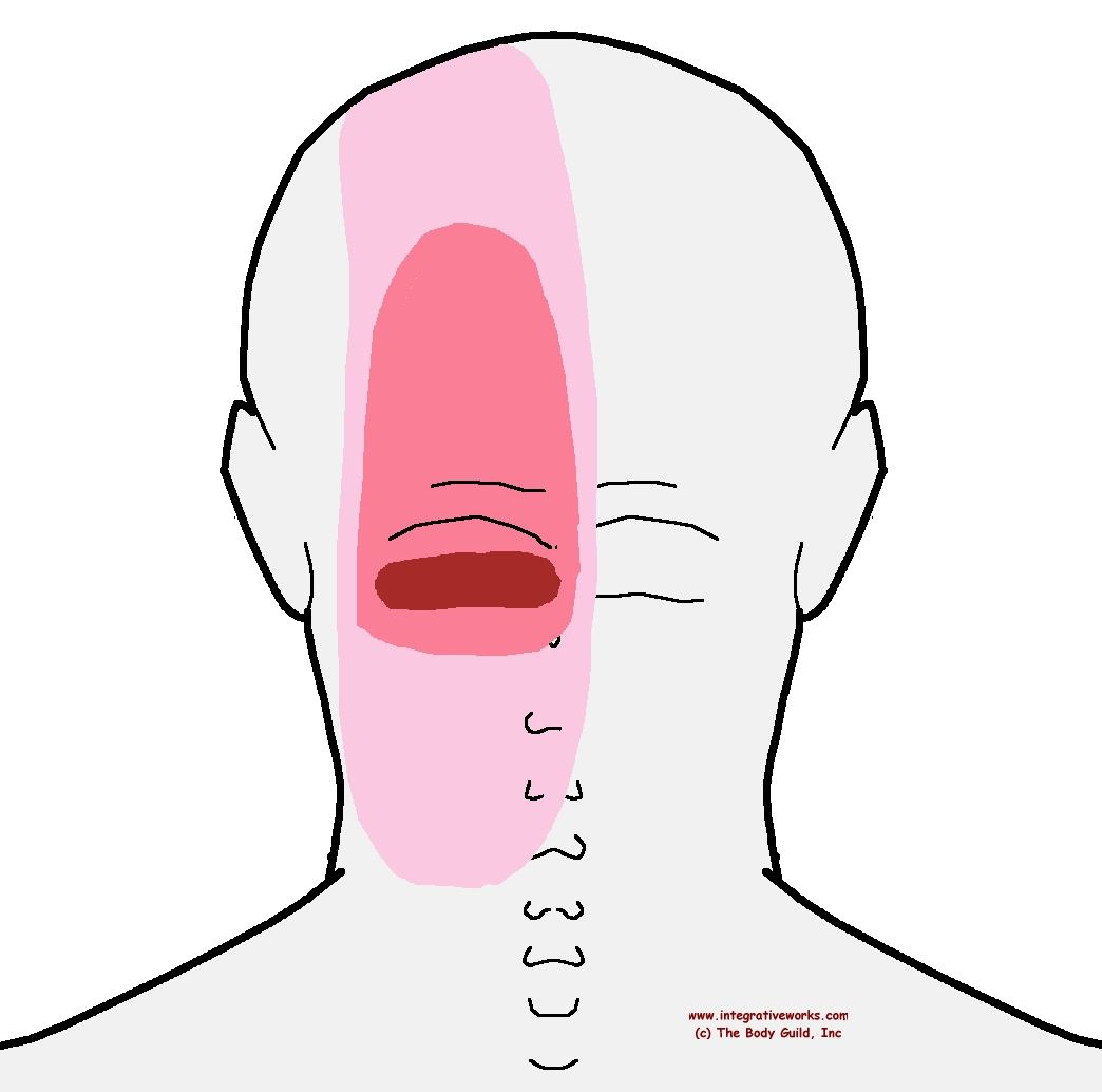 Trigger Points - Headache at the Back of Your Head - Integrative Works