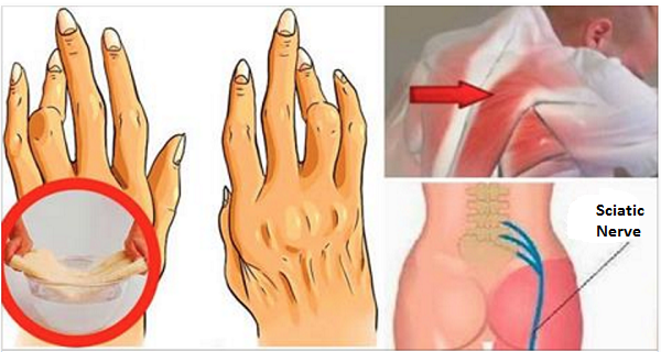 Simple And Easy Trick For Removing Arthritis, Back Pain And Sciatica ...