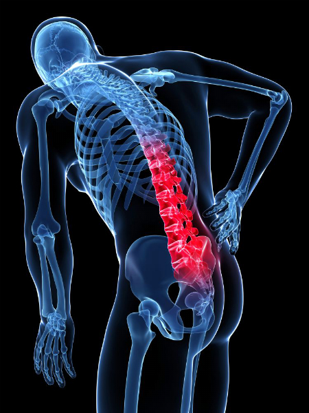 What is Back Pain? Types, Symptoms, Causes, Diagnosis and Treatments