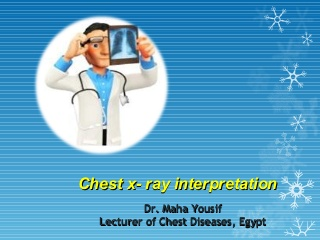 basics of chest X- ray interpretation