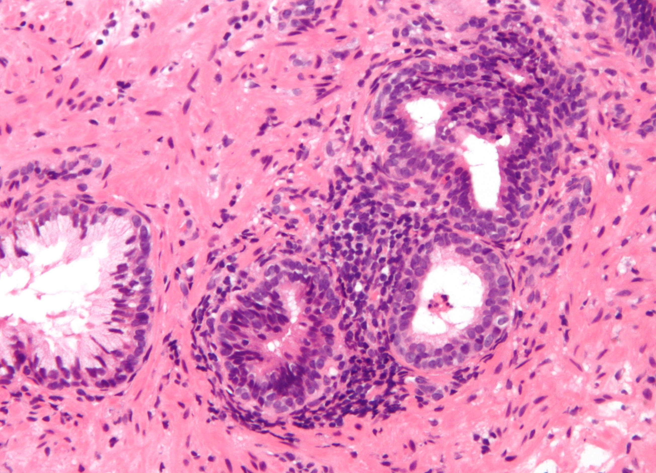 File:Inflammation of prostate.jpg