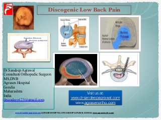 Discogenic low back pain Treatment agrasen hospital gondia vidarbha dr sandeep c agrawal www.drsandeepagrawal.com www.agrasenortho.com