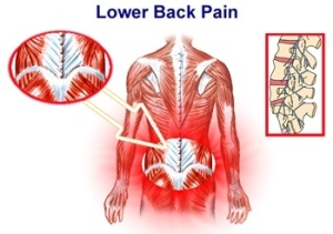 ... back pain. Common conditions that are related to low back pain include