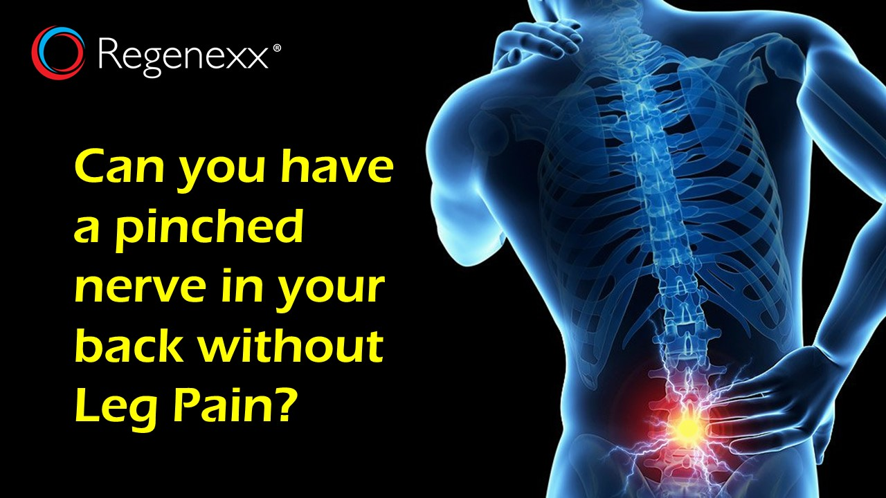 You May Have a Pinched Low Back Nerve Despite What Your Doctor Thinks ...