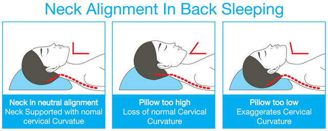 neck pain after sleeping pain neck blog painneck com