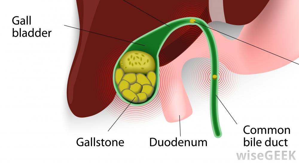 gall-bladder-with-gallstones.jpg