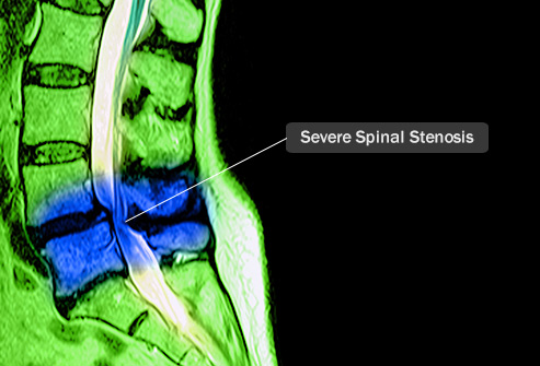Pictures: What Conditions Cause Back Pain?