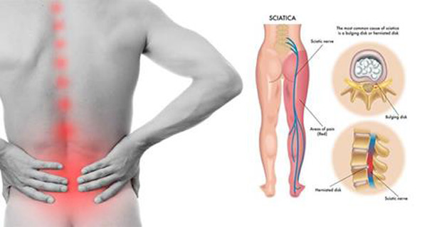 THE HIDDEN MUSCLE CAUSING YOUR SCIATICA PAIN AND 2 EASY STRETCHES FOR ...