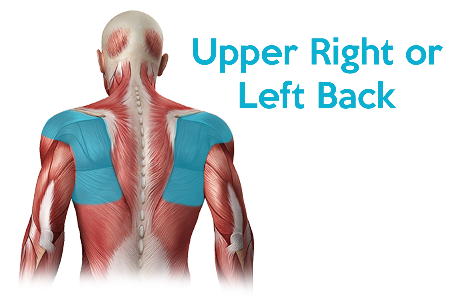Upper Back Pain - What