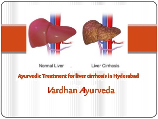 Ayurvedic treatment for liver cirrhosis in hyderabad - Vardhan Ayurveda