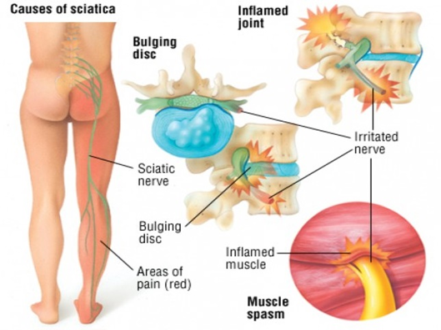 Sciatica or sciatic pain is leg pain, and possibly tingling, numbness ...