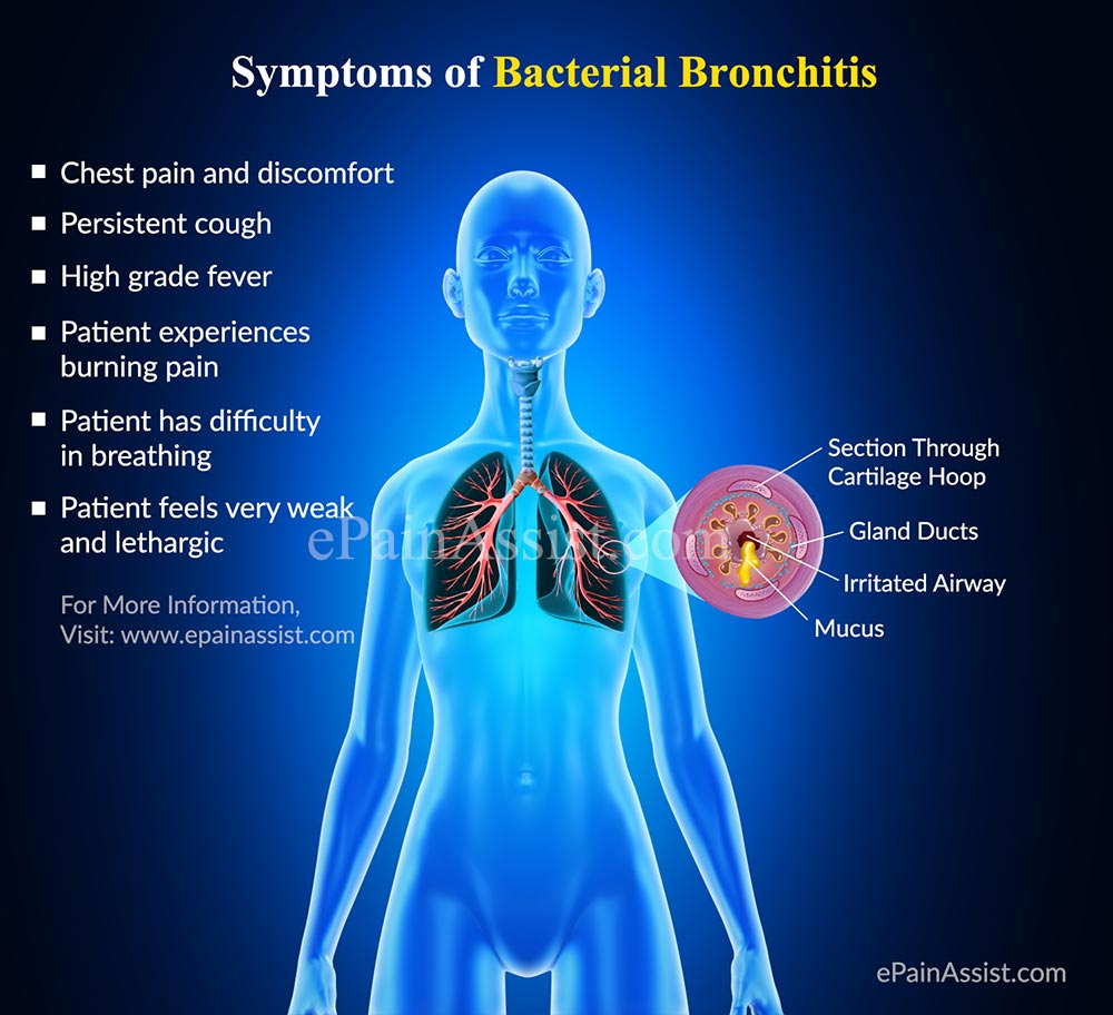 Bacterial Bronchitis: Causes, Symptoms, Risk Factors, Investigations ...