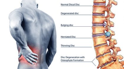 Lower Right Back Pain Causes right side back pain: causes and ...