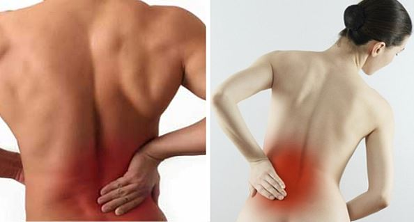 Treating Your Back Pain Naturally - Natural Medicine Team
