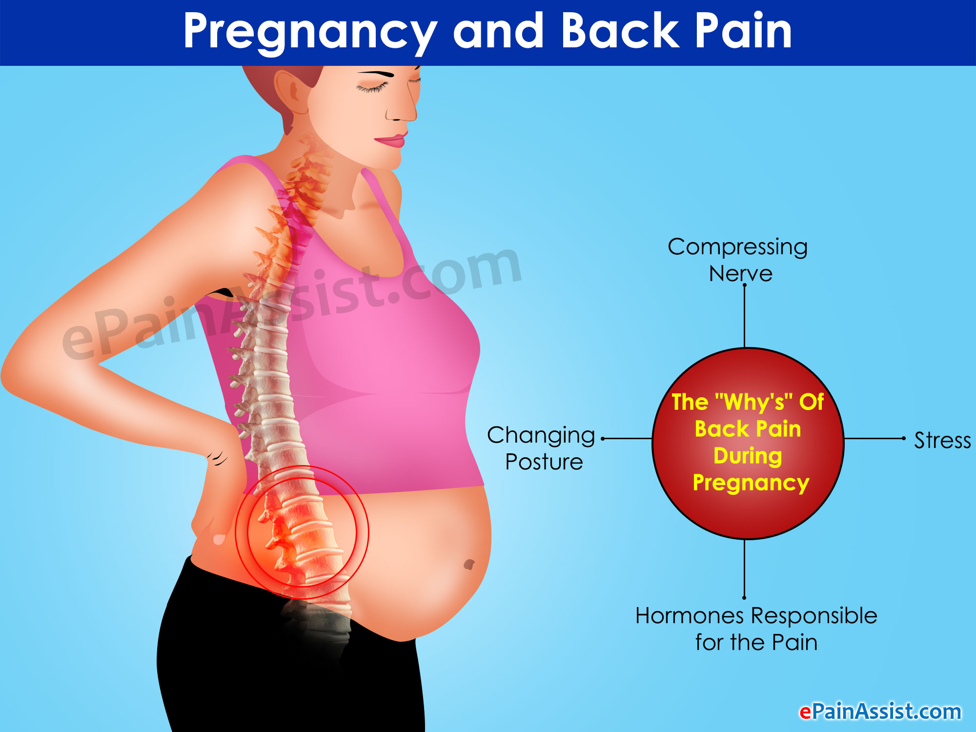 Pregnancy and Back Pain: The
