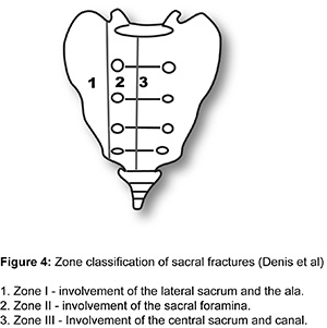Sacral Insufficiency Fractures - Orthopedics