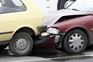 The Truth About Back Pain after a Car Accident - Pain Chiropractor