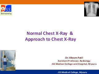 Approach to Chest X-Ray and Interpretation