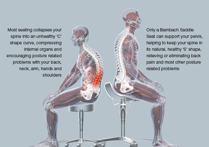 An unhealthy posture on a normal seat and a healthy posture on a ...