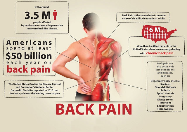 How to Stop Low Back Pain in Its Tracks - Low Back Pain Treatment