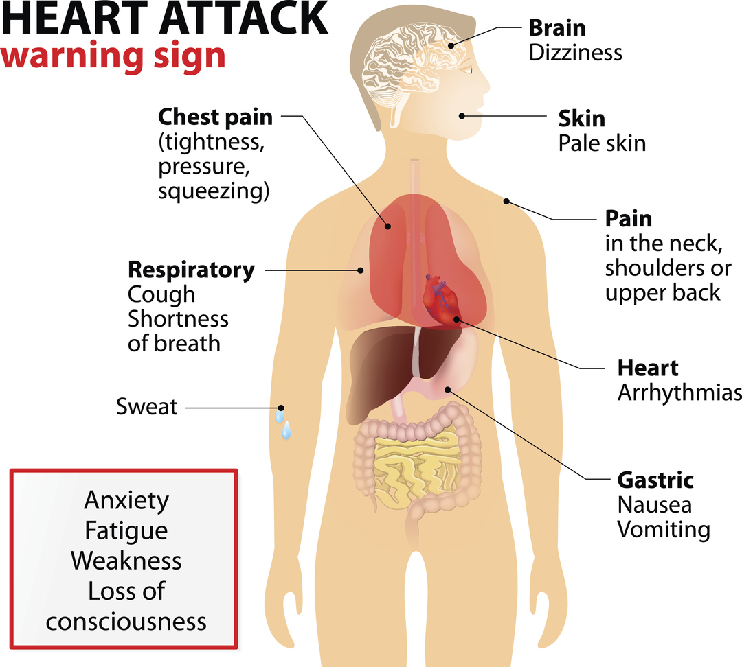 heart attack warning signs chest discomfort most heart attacks involve ...