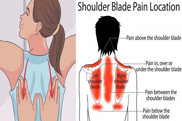 How To Tell If The Pain Between Your Shoulder Blades Is a Warning Sign ...