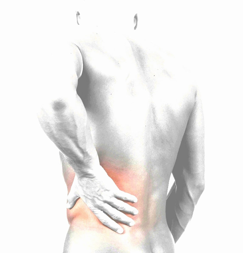 Sciatic pain is caused by irritation of the sciatic nerve exiting from ...