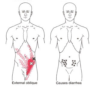 Drysdale Osteopathy, Abdominal Pain, IBS, Irritable Bowel Syndrome ...