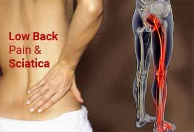 Low back pain and sciatica: Assessment and management, NICE guidelines ...