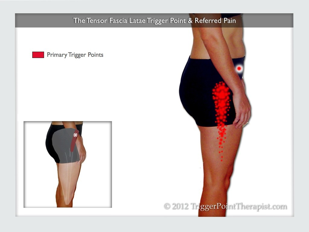 ... Point tensor fascia lata trigger point in it band and hip pain