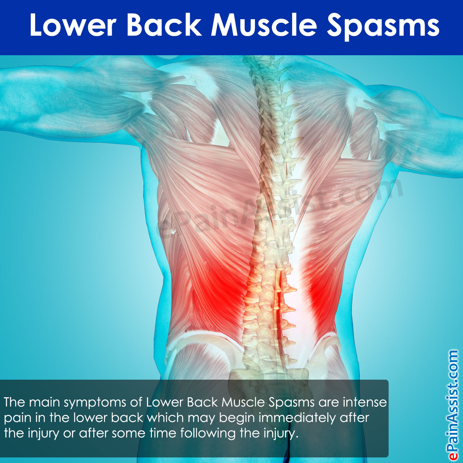 Lower Back Muscle Spasms: Treatment, Causes, Symptoms