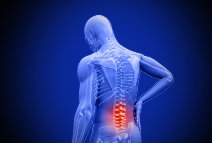 Three Alternative Methods in Treating Lower Back Pain - PARC Ontario