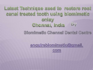 Latest Technique used to restore root canal treated tooth using biomimetic onlay Chennai, India