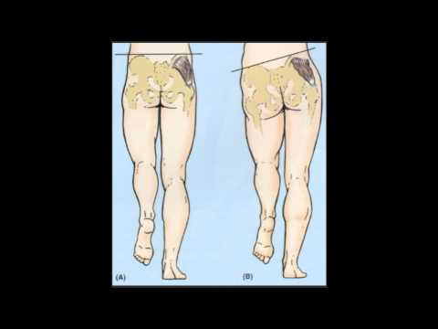 Do You Waddle When You Walk? Weak Hips? How to Stop Tre... - Doovi