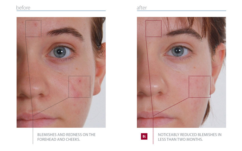Rx SKIN THERAPY - Before and After Photos