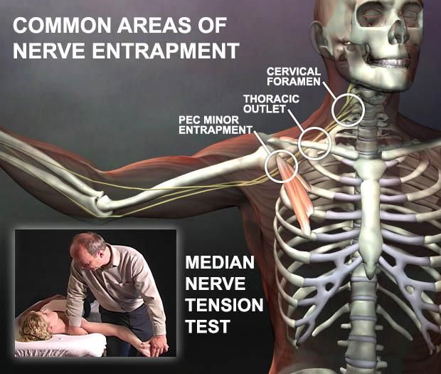 ... outlet syndrome more hand therapy median nerve dvd nerve nerve