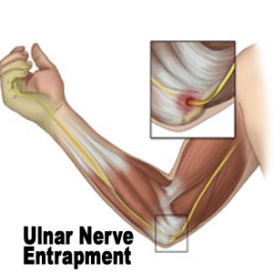 Ulnar nerve entapment is one of the most common injuries sustained by ...