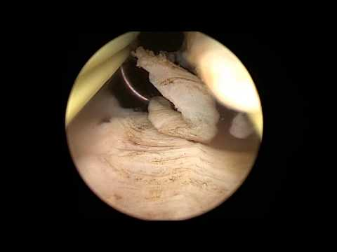 Uterus+Ablation Office Hysteroscopy Endometrial Ablation Bipolar ...