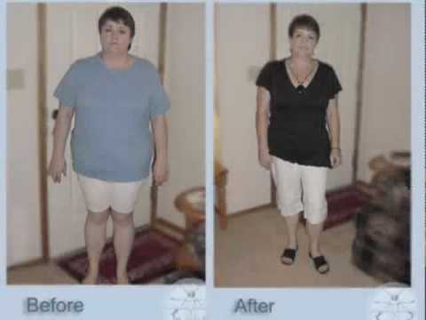Weight Loss Surgery Testimonial \/ Gastric Sleeve (VSG) - YouTube